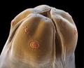 rondworm